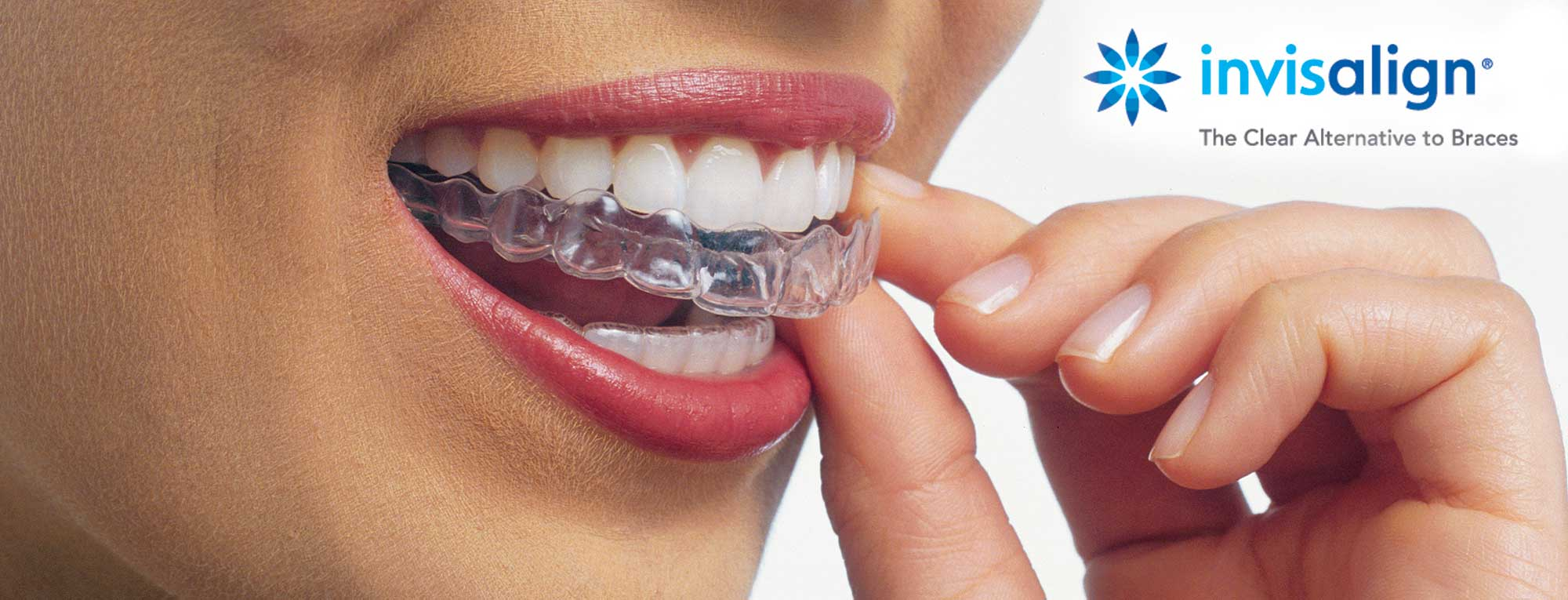 Invisalign Dentist Long Beach